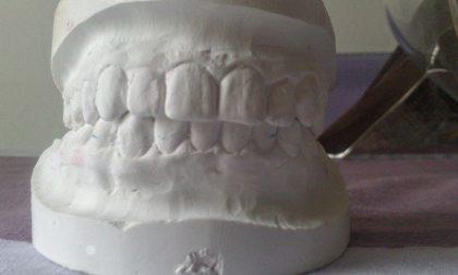Protesi dentali in gesso abbandonate in un bosco. Il dentista si costituisce