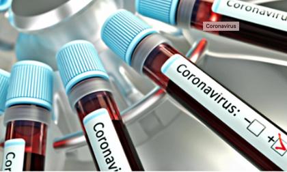 Coronavirus, nel Biellese quattro positivi e sei guariti nelle ultime 24 ore